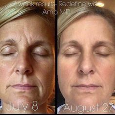 Reduce visible appearance of lines, pores and loss of firmness and get that softer, smoother looking skin with Rodan + Fields REDEFINE Regimen. Rodan And Fields Redefine, Redefine Regimen, Rodan Fields Skin Care, My Rodan And Fields, Skin Care Regimen, Roden And Fields, Amp Md Roller, Derma Roller, Wellness