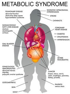 what does Visceral Fat In Women cause to other organ with in the body | Metabolic Syndrome Causes and is Caused by Obesity