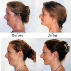 Sharpen the jawline, tighten the jowls, and lose a double chin with facelift exercises