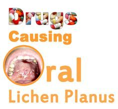 Oral Lichen Planus is a very painful condition. There are number of causes of development of Oral Lichen Planus. There are number of drugs which are responsible for the formation of Oral Lichen Planus in a patient. To know more about these drugs visit the link. http://www.askdrshah.com/blog/drugs-that-cause-oral-lichen-planus/ #OralLichenPlanus #OralLichenPlanus #OralLichenPlanusDrugs