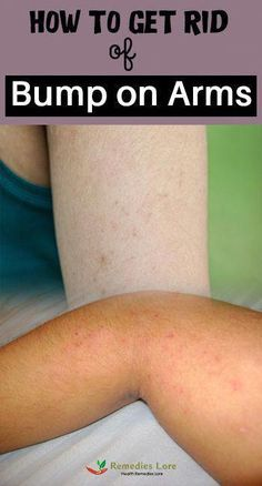 How To Get Rid Of Arm Bumps a.a keratosis pilaris or Chicken Skin Warts On Hands, Warts On Face, Bumps On Arms, Skin Bumps, Get Rid Of Warts, Remove Warts, What Causes Warts, Flat Warts, Skin Tag Removal