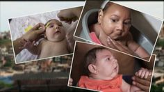 Zika Fever Symptoms ~ Let's live healthy