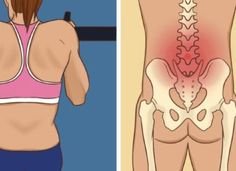 Sciatica, Healthy Mind, Body Shapes, Pilates, Yoga, Fitness, Sports, Life, Diet