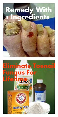 Remedy With 3 Ingredients To Eliminate Toenail Fungus For Lifetime - Natural Cures Planet Herbal Remedies, Health Remedies, Home Remedies, Natural Cures, Natural Healing, Natural Treatments, Remedies For Kidney Infection, Health And Wellness, Health Tips