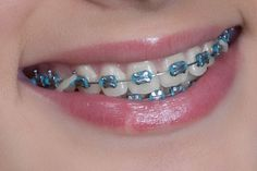 I've been debating getting braces for quite a while. I really want my teeth straight but I think I would look strange having braces at my age. I'll may have to abandon my pride and get them so that I won't have to worry about it any more. Green Braces, Fake Braces, Kids Braces, Dental Braces, Teeth Braces, Braces Bands, Braces Tips, Rainbow Braces, Braces Transformation
