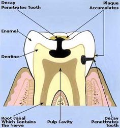 Toothache Home Remedies, Treatment, Cure, Symptoms, Causes, Pain Relief