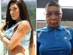 Cazuza: Travesti fica desfigurada após prisão em SP