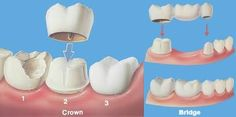 Both crowns and most bridges are fixed prosthetic devices. Unlike removable devices such as dentures, which you can take out and clean daily, crowns and bridges are cemented onto existing teeth or implants, and can only be removed by a dentist.Visit www.novadenttly.com