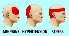 Wenn Sie Kopfschmerzen haben und keine Tablette zur Hand haben, scheint die Situation hoffnungslos zu sein. Aber dem ist nicht so. Es gibt eine wissenschaftliche Methode namens Akupressur, um die Kopfschmerzen loszuwerden.