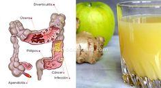 Hoy en día, las personas sufren muy a menudo de problemas comunes de salud que están relacionados con el sistema digestivo y su funcionamiento, tales como intestinos dañados, estreñimiento crónico o síndrome del intestino irritable.\r\n\r\n[ad]\r\n\r\nEl papel del colon es de vital importancia para la salud en general, ya que elimina los desechos del cuerpo y limpia las toxinas que ponen en riesgo la salud.\r\n\r\n\r\n\r\nEl intestino es nuestro \