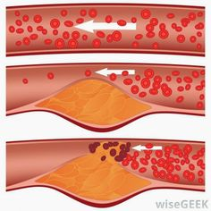 Foods to Prevent Your Arteries from Clogging