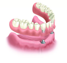 Natural Dental Office Contest Need a Dental Clinic? We Offer Reliable, Comprehensive Dental Care Service for Everyone. Contact Us. Specialized Dental Care Experts Ready to Help You with Your Dental Issues. Dental Implant Procedure, Best Dental Implants, Implant Dentistry, Teeth Implants, Dental Surgery, Dental Bridge Cost, Affordable Dental Implants, Dental Photography, Dental Care