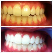 Poniżej przedstawimy Ci genialny przepis na domowe wybielanie zębów. Metoda taka jak wszystkie inne na naszej stronie - tania, skuteczna i zdrowa. Co więcej, sposób ten oprócz wybielenia zębów pomaga także na krwawiące dziąsła, na zapalenia jamy ustnej oraz zwalcza nieprzyjemny oddech. Nie niszczy szkliwa i jest bezpieczny. Przepis na proste wybielenie zębów: Czego potrzebujemy: Składniki: pół łyżeczki sody 10 kropli wody utlenionej 5 kropli soku z cytryny Przygotowanie domowej past...