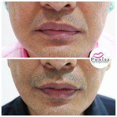 #Punisaclinic #ศัลยกรรม #ปาก #ศัลยกรรมปาก #ปากบาง #ปากกระจับ #ปากปีกนก  #Beauty #Number1 #Lips #LipReduction #LipSurgery #Professional #Lip #Reduction #Surgery #Thailand #plasticsurgery #lipreductionsurgery #thailand #doctorthinlips#Punisaclinic #lipsurgery #lipreduction#lipreductionsurgery #asianlips #plasticsurgeons#plasticsurgery #Thailandsurgery Lip Surgery, Places To Visit, Lips