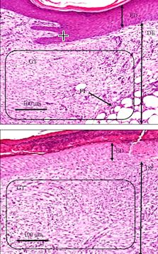 New Evidence That Electrical Stimulation Accelerates Wound Healing | In the new research, half-centimeter harmless wounds were created on each upper arm of the volunteers. One wound was left to heal normally, while the other was treated with electrical pulses* over a period of two weeks. The pulses stimulated angiogenesis — the process by which new blood vessels form — increasing blood flow to the damaged area and resulting in wounds healing significantly faster... [The Future of Medicine…