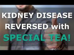Kidney Detox, Kidney Health, Health Diet, Kidney Foods, Kidney Friendly Foods, Stage 3 Kidney Disease, Kidney Disease Symptoms, Improve Kidney Function, Kidney Dialysis