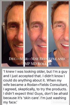 Rodan + Fields Products work for everyone that will give it a try!  Message me!