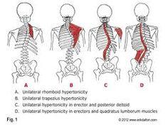 """Résultat de recherche d'images pour """"psoas muscle LLD"""""""