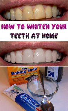 How to Whiten Your Teeth at Home