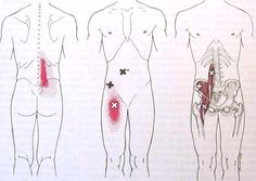 Iliopsoas Trigger Point Diagram