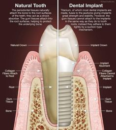 Are you tired of wearing denture ? Or do you have missing teeth? Implant is the answer..... http://velasquezdental.com/newsletter--blog/implants
