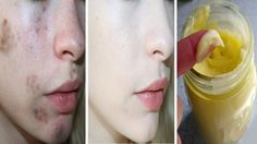 3 Days treatment that will remove all dark black spots and acne scars from your face