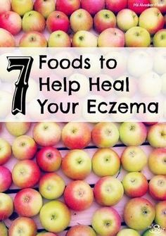 7 foods that help heal your eczema. Quercetrin, (apples berries citrus), magnesium, zinc.