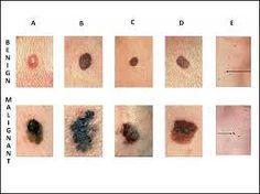 Dispositivo para diagnosticar el cáncer de piel en 10 segundos.-Canan Dağdeviren, un médico turco, inventó un dispositivo que puede diagnosticar fácil y rápidamente el cáncer de piel.  Se pega a la piel como un tatuaje y proporciona resultados en menos de 10 segundos.  El dispositivo ejerce presión sobre la piel con el fin de determinar si  tiene una tendencia a desarrollar células cancerosas o no. Fue probado en un paciente que se sospechaba que tienen cáncer y los médicos realizaron una…