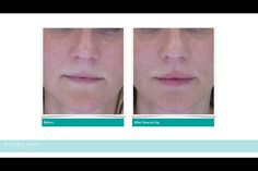 Instant natural lip augmentation with Emervel Lip. Hydrates, volumises, very soft and lasts for average of 6 months.