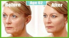 double chin + how to get rid of double chin + how to get rid of double chin exercises + how to lose double chin exercises + double chin without surgery + best double chin #double #chin #exercises #noalcohol #nosweet #nosugar #homecare Oily Skin Care, Anti Aging Skin Care, Skin Care Tips, Remedies For Glowing Skin, Home Remedies For Skin, Coconut Hair Mask, Coconut Oil For Skin, Natural Face Cleanser, Skin Tightening Cream