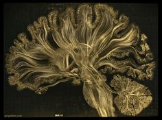 The white matter tracts that wind throughout this microetching are based on diffusion spectrum imaging data from a human brain, realistically portraying the circuits found within a sagittal brain section.