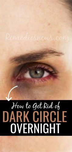 How to Get Rid of Dark Circle Under Eyes Overnight Best Home Remedies How do you get rid of dark circles under your eyes? Learn how to fix dark circles under eyes.Included causes, symptoms,creams for dark circles under eyes Dark Spots Under Eyes, Dark Circles Under Eyes, Dark Under Eye, Dark Rings Around Eyes, Beauty Tips For Face, Natural Beauty Tips, Beauty Hacks, Beauty Secrets, Beauty Ideas