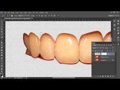 Como deixar os dentes brancos (mascara de camada) - Photoshop