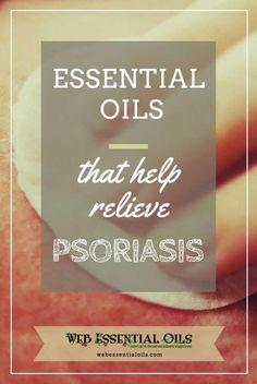 essential- oils for psoriasis relief