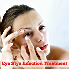 Eye Stye Infection Treatment