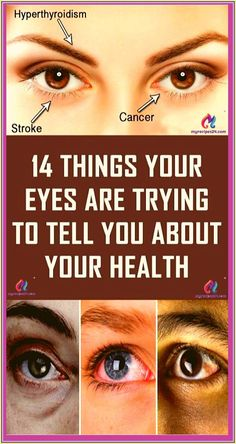 14 Things Your Eyes are Trying to Tell You About Your Health Healthy Tips, How To Stay Healthy, Keeping Healthy, Healthy Brain, Healthy Food, Healthy Heart, Healthy Detox, Healthy Habits, Good Health Tips