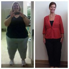 Weight lost: 257 lbs.Her weight loss journey: After trying several weight loss programs, Gilpin down... - Leigh Minner