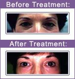 Laser Resurfacing Types Of Acne, Movies, Movie Posters, Film Poster, Films, Popcorn Posters, Film Books, Movie, Film Posters