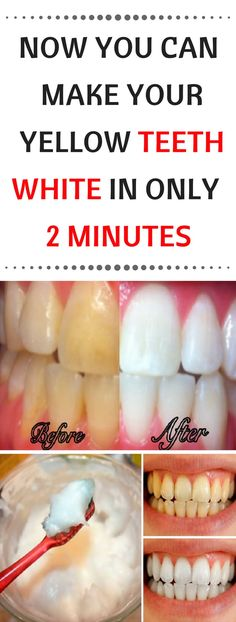 Healthy and white teeth are something that everybody desires. But to achieve thi… Healthy and white teeth are something that Teeth Whitening Remedies, Natural Teeth Whitening, Whitening Kit, Homemade Teeth Whitening, Hi Smile Teeth Whitener, White Teeth Remedies, Home Whitening Teeth, Coconut Teeth Whitening, Homemade Toothpaste