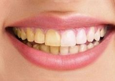 denti cocco