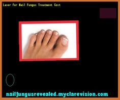 Laser for nail fungus treatment cost - Nail Fungus Remedy. You have nothing to lose! Visit Site Now