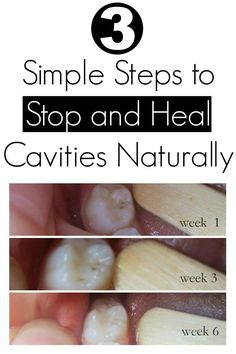 3 Simple Steps to Stop and Heal Cavities Naturally