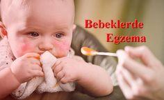Bebeklerde Egzama