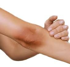 Home remedies for treating dark elbows and knees: Mix sugar with honey and use it as a scrub twice a week. This is a wonderful natural polisher. Cut a lemon in half, and scrub your knees with it. Leave lime juice overnight on your dark elbows and knees and see the difference for yourself. Make a paste of milk cream, a pinch of turmeric, and 3 drops of basil leaf extract. Rub this mixture on dark elbows and knees and keep it overnight for maximum affect.