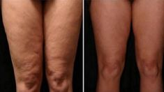 Lose Cellulite, Cellulite Scrub, Cellulite Cream, Cellulite Remedies, Anti Cellulite, Healthy Drinks, Healthy Tips, Most Popular Drinks, Uses For Coffee Grounds
