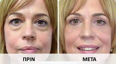 11 τρόποι για να εξαφανίσετε τις σακούλες κάτω από τα μάτια! Face Care, Beauty Hacks, Beauty Tips, Healthy Life, Health And Beauty, Health Fitness, Hair Beauty, Make Up, Eyes