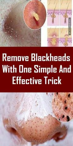 We all want to have clear skin, but those little parasites called blackheads come between our wishes. Blackheads are very small pimples with no skin on them What Are Blackheads, How To Remove Pimples, Remove Acne, Health Remedies, Home Remedies, Natural Remedies, Herbal Remedies, Holistic Remedies, Healthy Tips