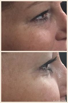 It Works Wow results in less than 45 seconds!!! Nanners1.ItWorks.com