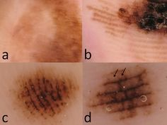 Dermoscopy of early stage ALM (a,b) and melanocytic nevi (c,d). (a) Irregular diffuse pigmentation, (b) parallel ridge pattern, (c) parallel...