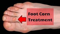Home remedies for corns on feet. Get rid of corns on feet fast. Cure corns on feet naturally. Remove corns on feet. Prevent corns on feet fast & overnight.
